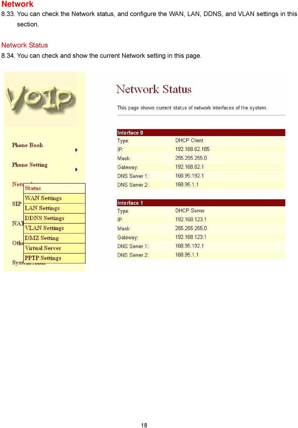 WAN, LAN, DDNS, and VLAN settings in this section.