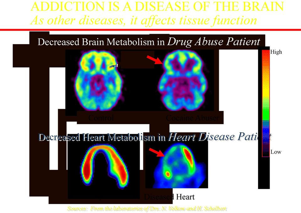 Cocaine Abuser Decreased Heart Metabolism in Heart Disease Patient Low