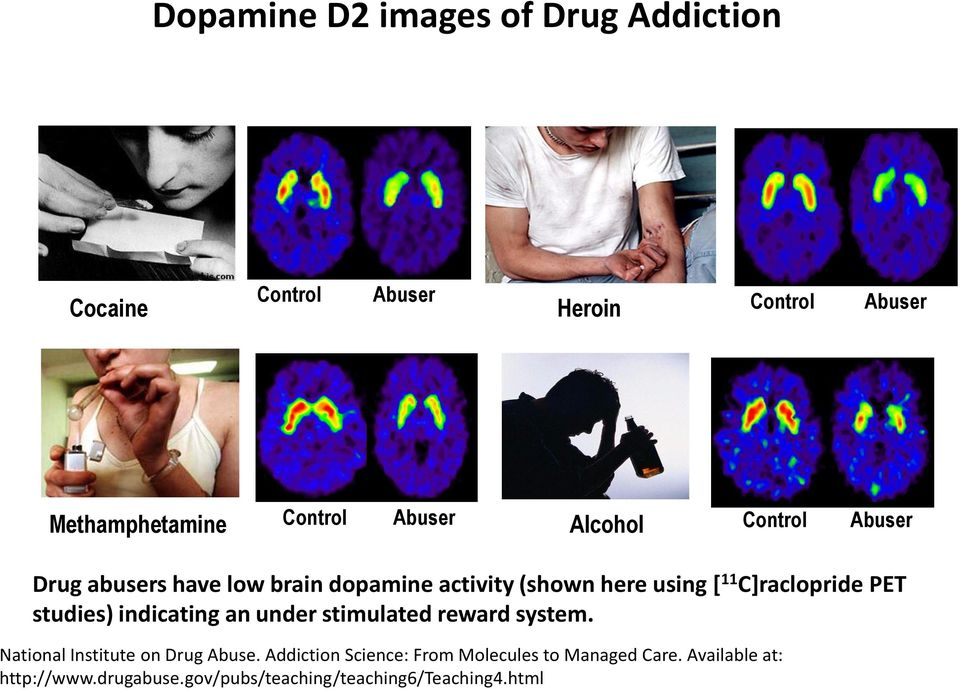 C]raclopride PET studies) indicating an under stimulated reward system. National Institute on Drug Abuse.