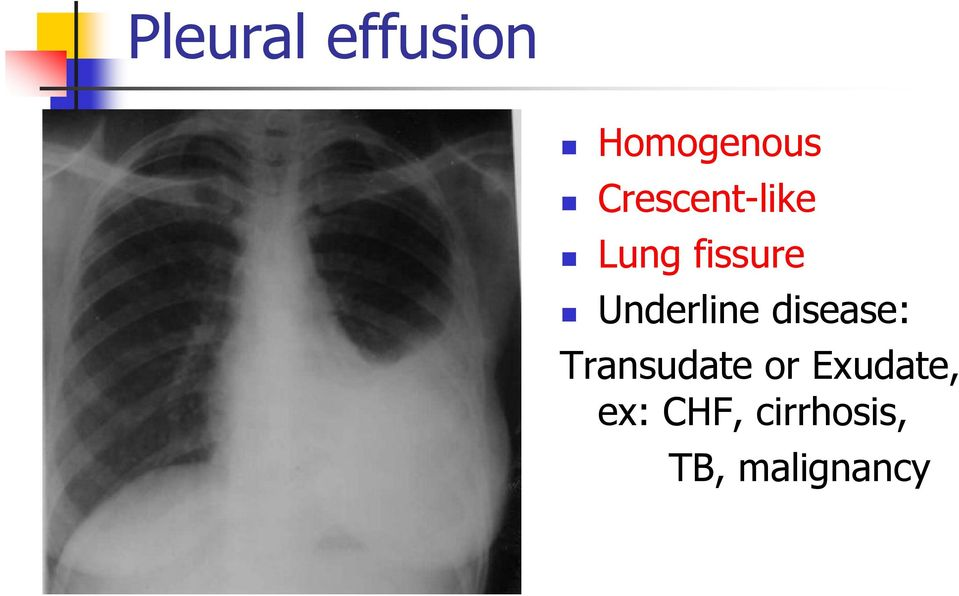Underline disease: Transudate or