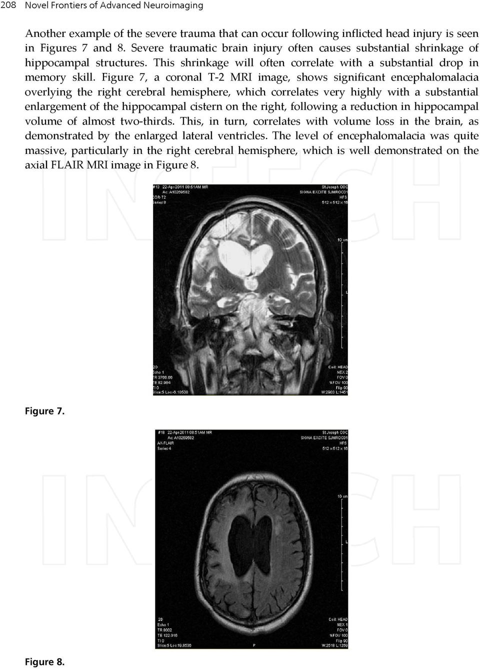 Figure 7, a coronal T-2 MRI image, shows significant encephalomalacia overlying the right cerebral hemisphere, which correlates very highly with a substantial enlargement of the hippocampal cistern