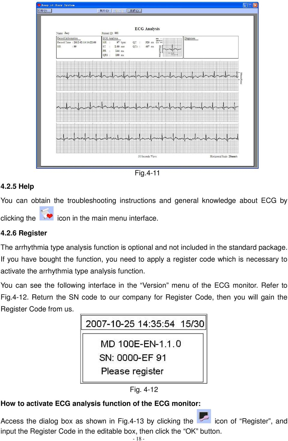 You can see the following interface in the Version menu of the ECG monitor. Refer to Fig.4-12. Return the SN code to our company for Register Code, then you will gain the Register Code from us. Fig. 4-12 How to activate ECG analysis function of the ECG monitor: Access the dialog box as shown in Fig.