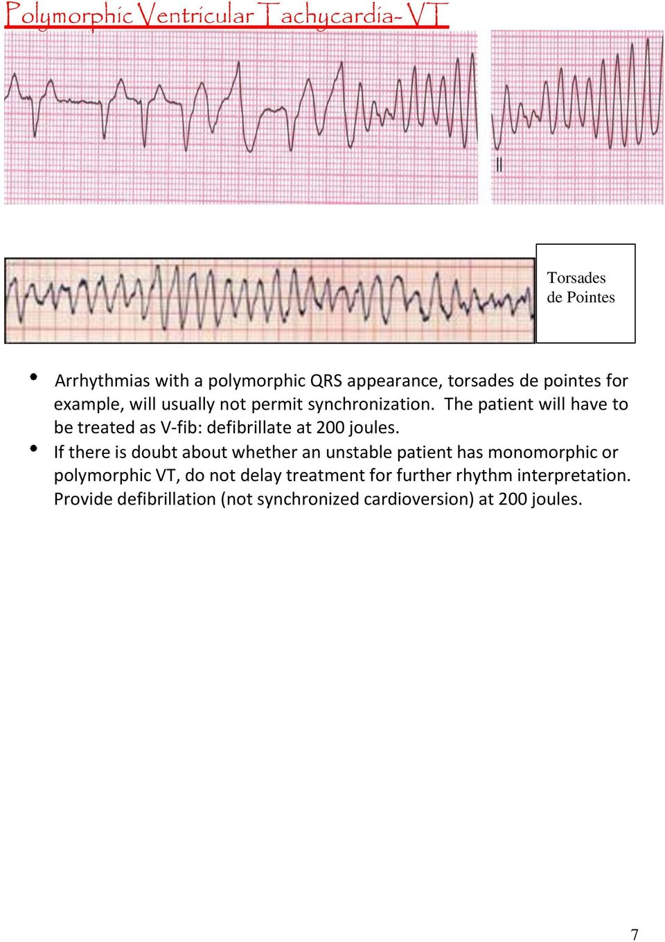 The patient will have to be treated as V-fib: defibrillate at 200 joules.