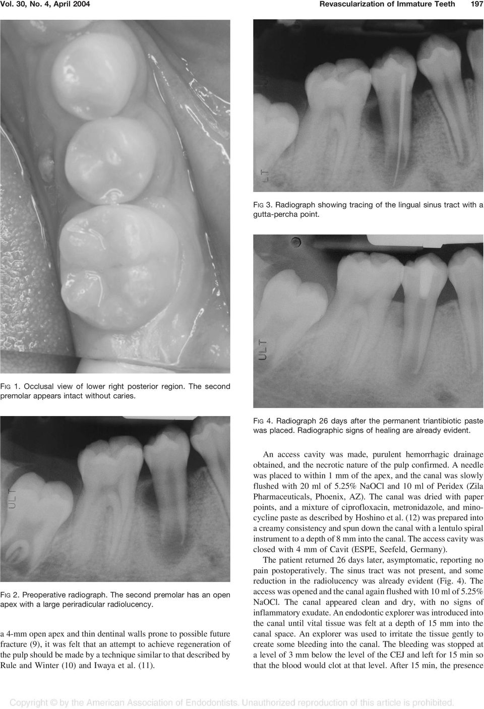 Radiographic signs of healing are already evident. FIG 2. Preoperative radiograph. The second premolar has an open apex with a large periradicular radiolucency.