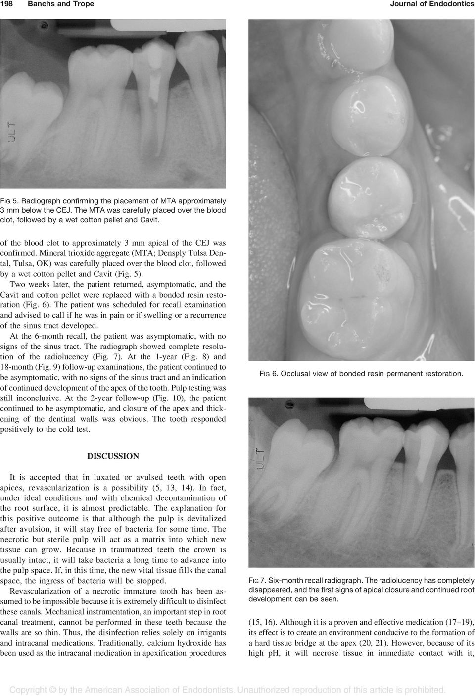 Mineral trioxide aggregate (MTA; Densply Tulsa Dental, Tulsa, OK) was carefully placed over the blood clot, followed by a wet cotton pellet and Cavit (Fig. 5).