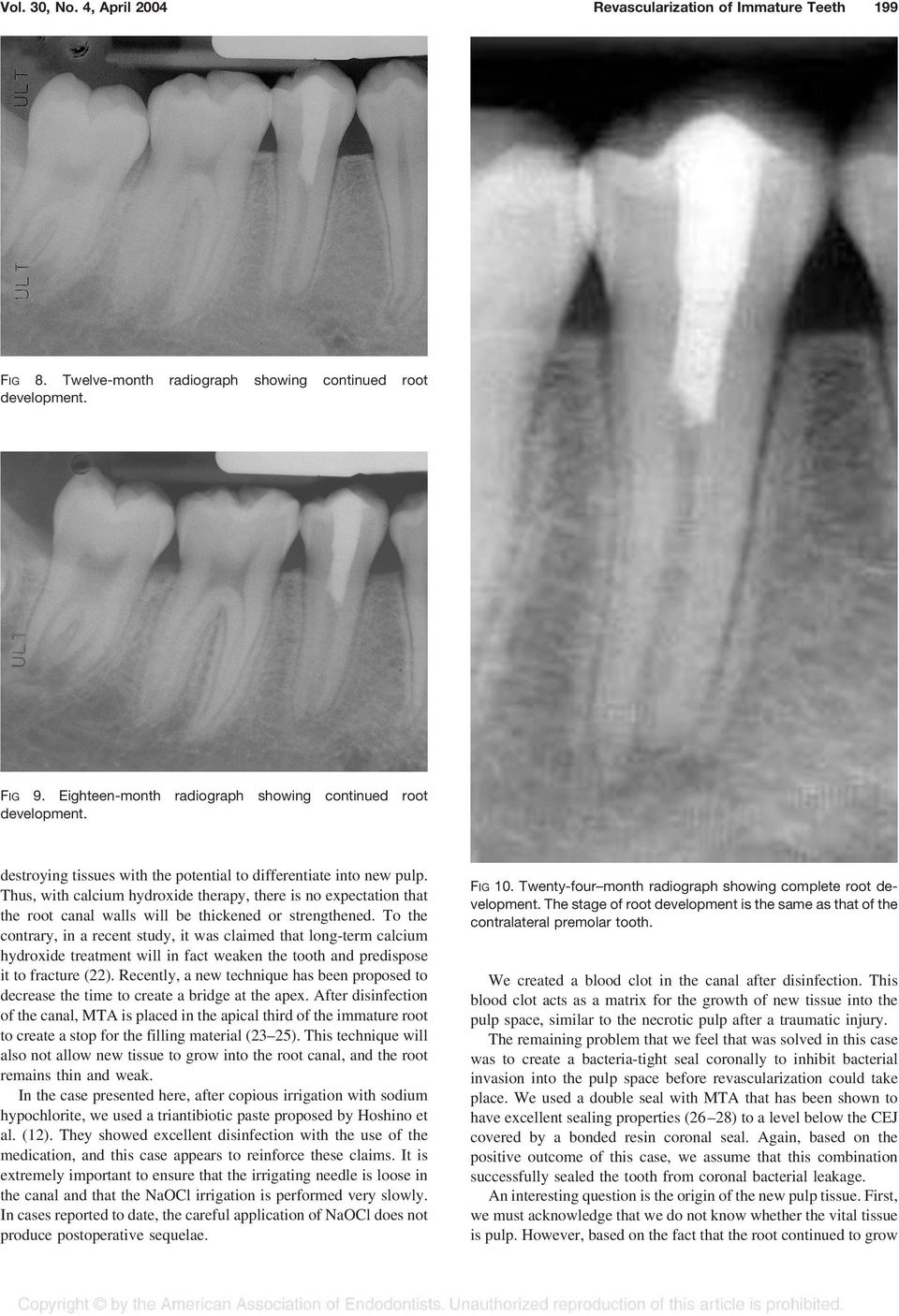 Thus, with calcium hydroxide therapy, there is no expectation that the root canal walls will be thickened or strengthened.