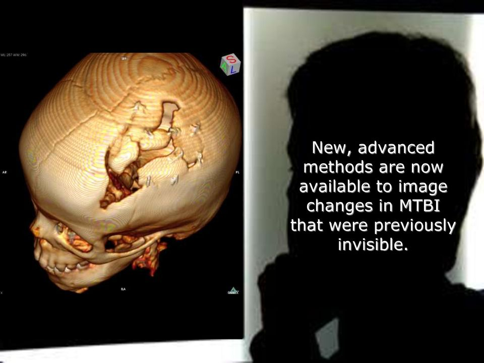 image changes in MTBI