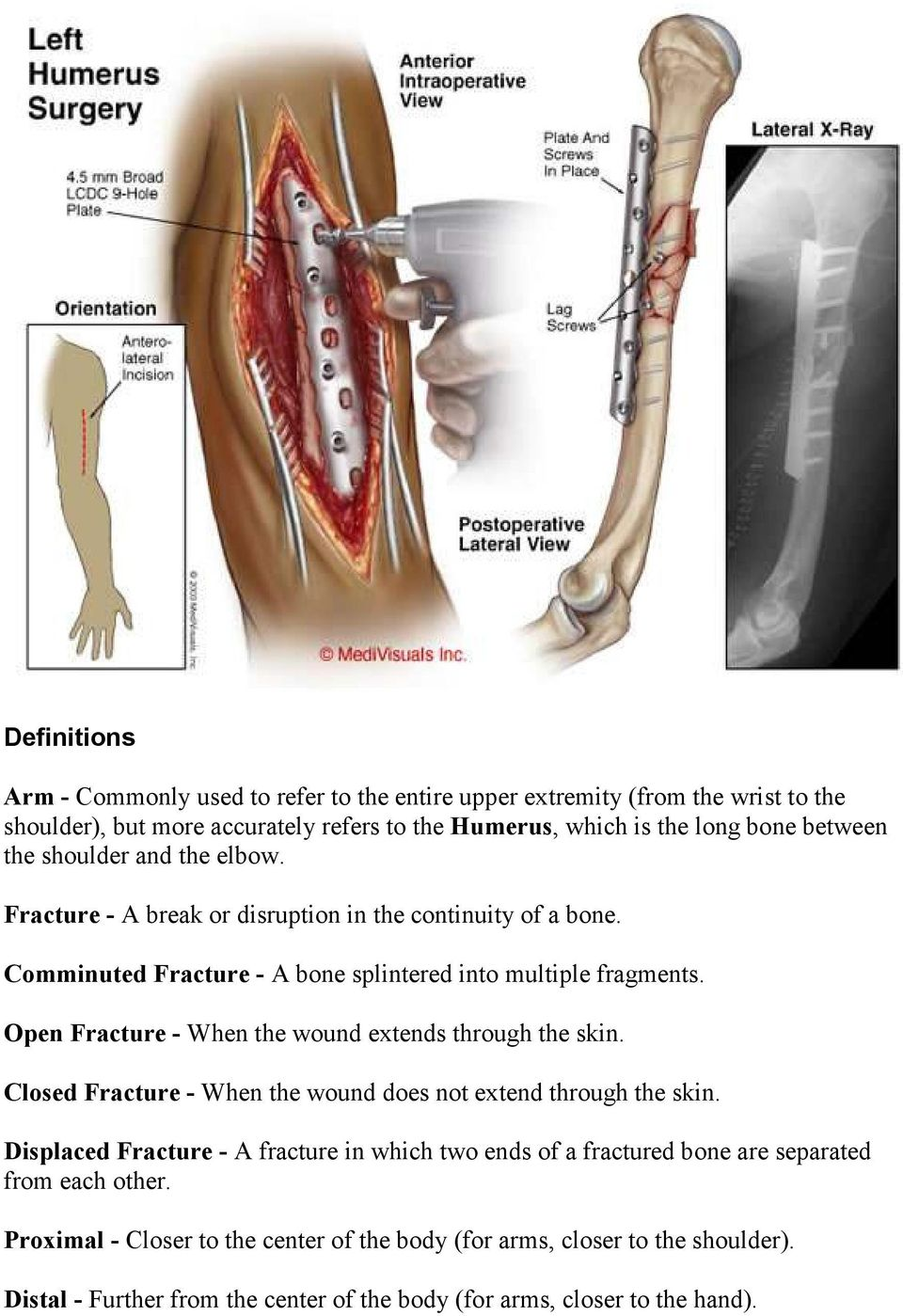 Open Fracture - When the wound extends through the skin. Closed Fracture - When the wound does not extend through the skin.
