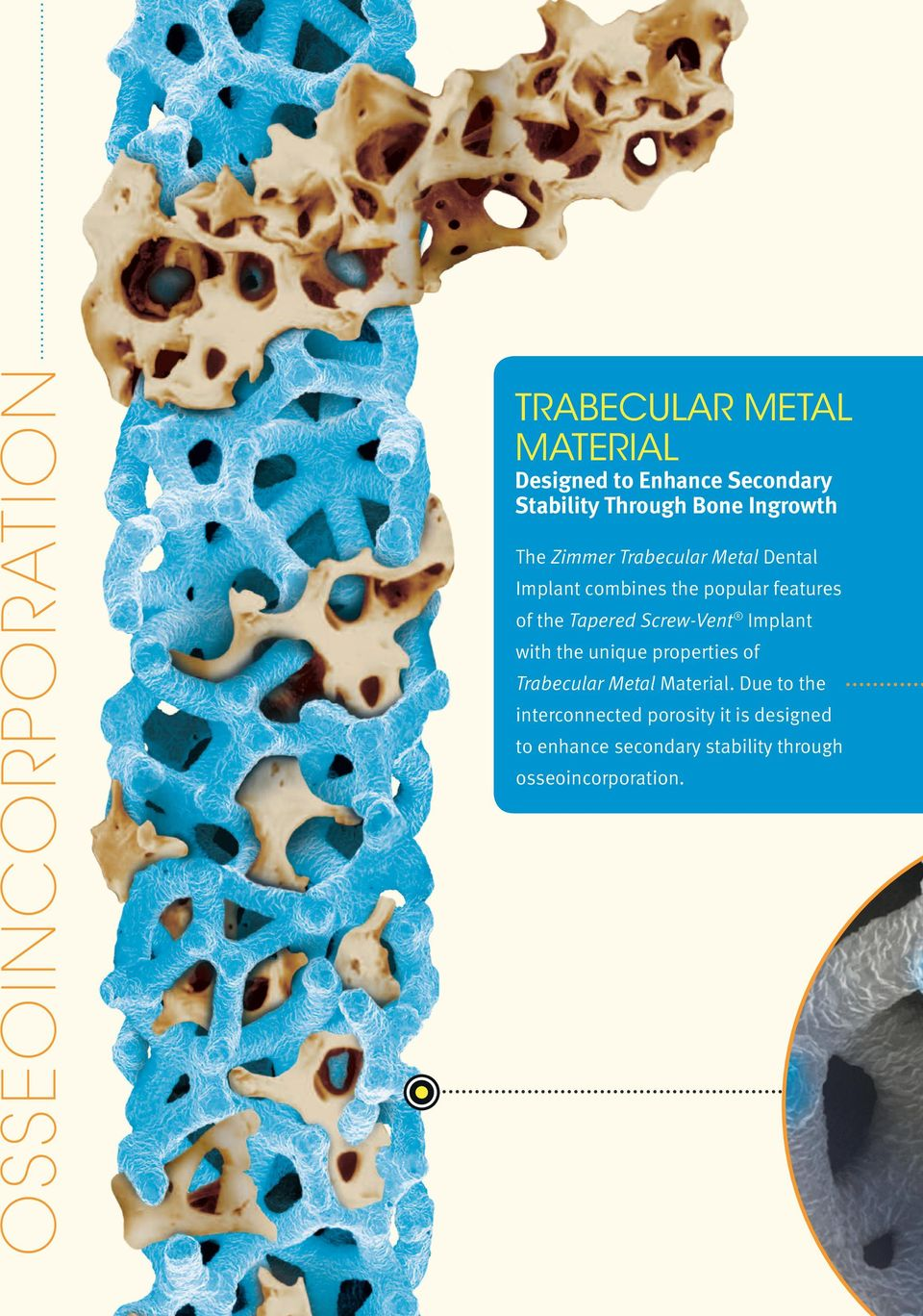 Tapered Screw-Vent Implant with the unique properties of Trabecular Metal Material.