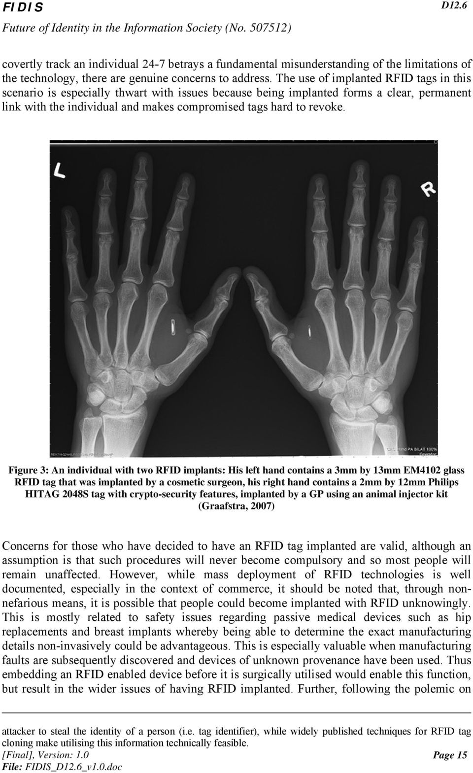 Figure 3: An individual with two RFID implants: His left hand contains a 3mm by 13mm EM4102 glass RFID tag that was implanted by a cosmetic surgeon, his right hand contains a 2mm by 12mm Philips