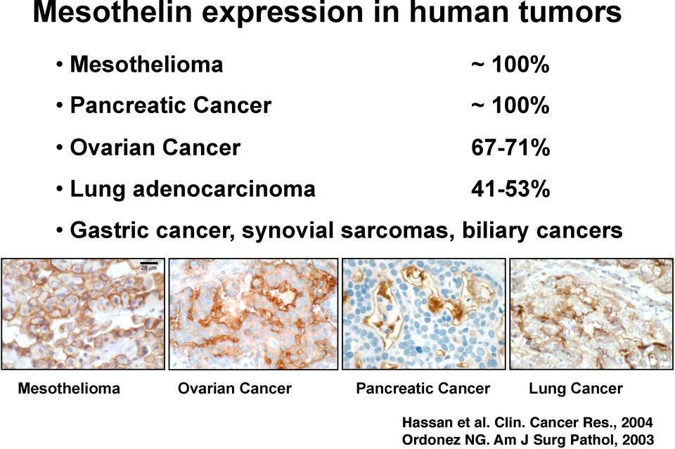 sarcomas, biliary cancers Mesothelioma Ovarian Cancer Pancreatic Cancer Lung