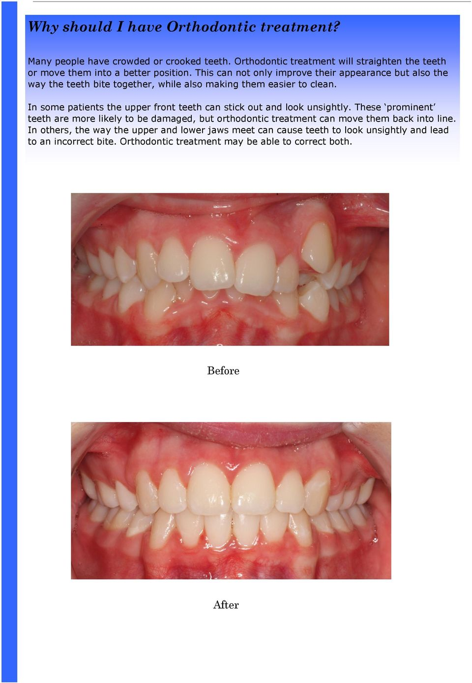 This can not only improve their appearance but also the way the teeth bite together, while also making them easier to clean.
