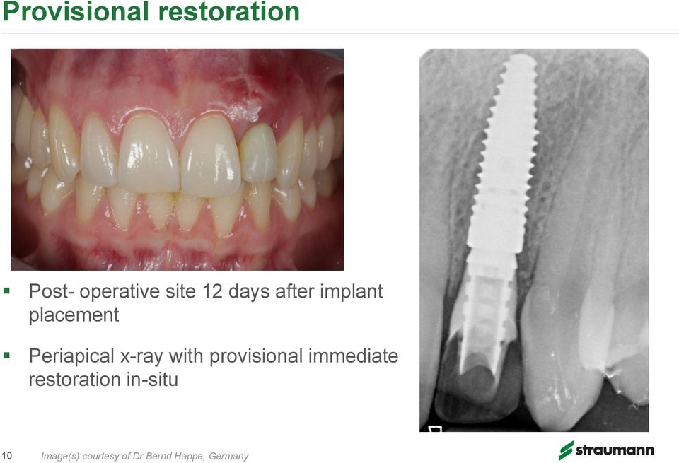 x-ray with provisional immediate restoration