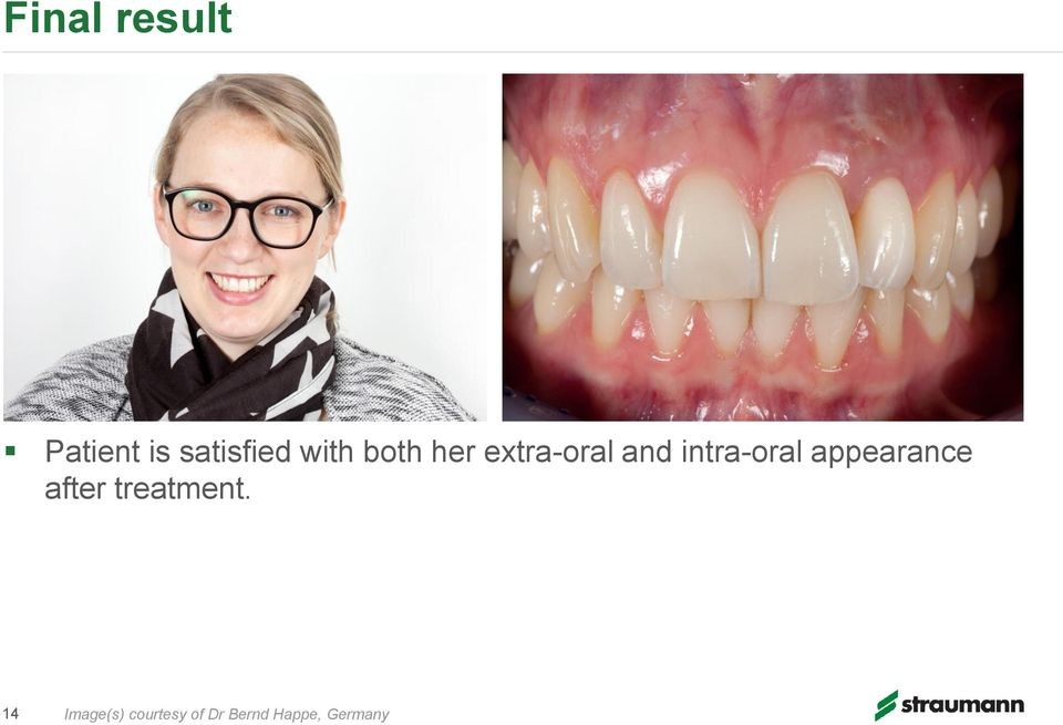 intra-oral appearance after treatment.