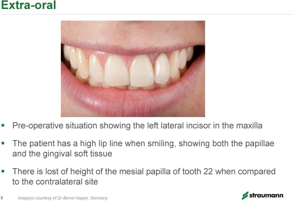 and the gingival soft tissue There is lost of height of the mesial papilla of