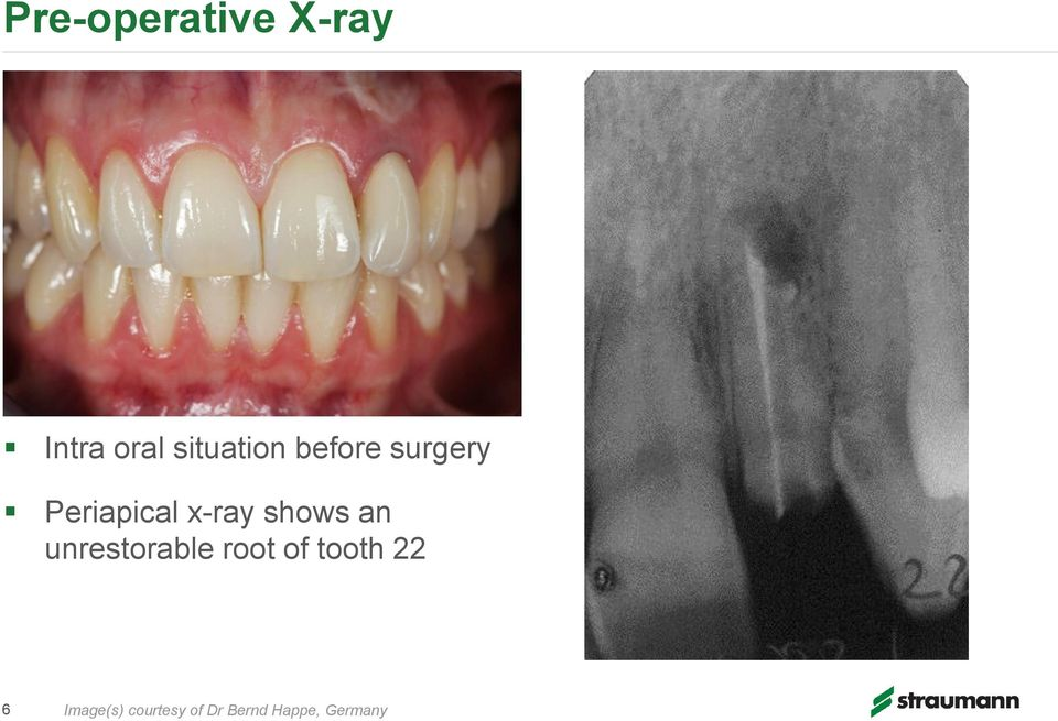 x-ray shows an unrestorable root of