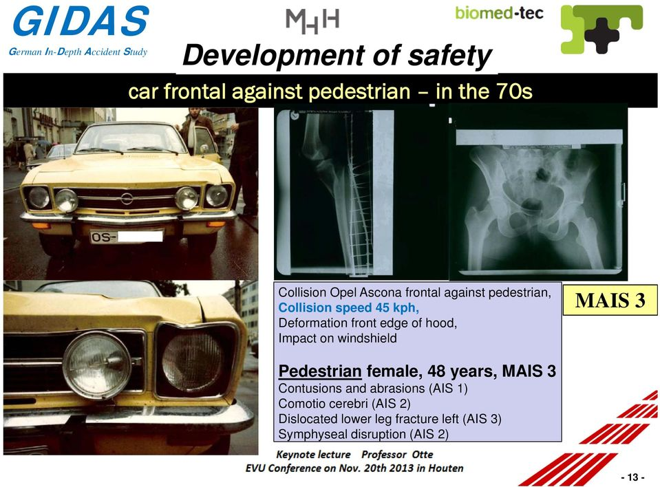 on windshield MAIS 3 Pedestrian female, 48 years, MAIS 3 Contusions and abrasions (AIS 1)