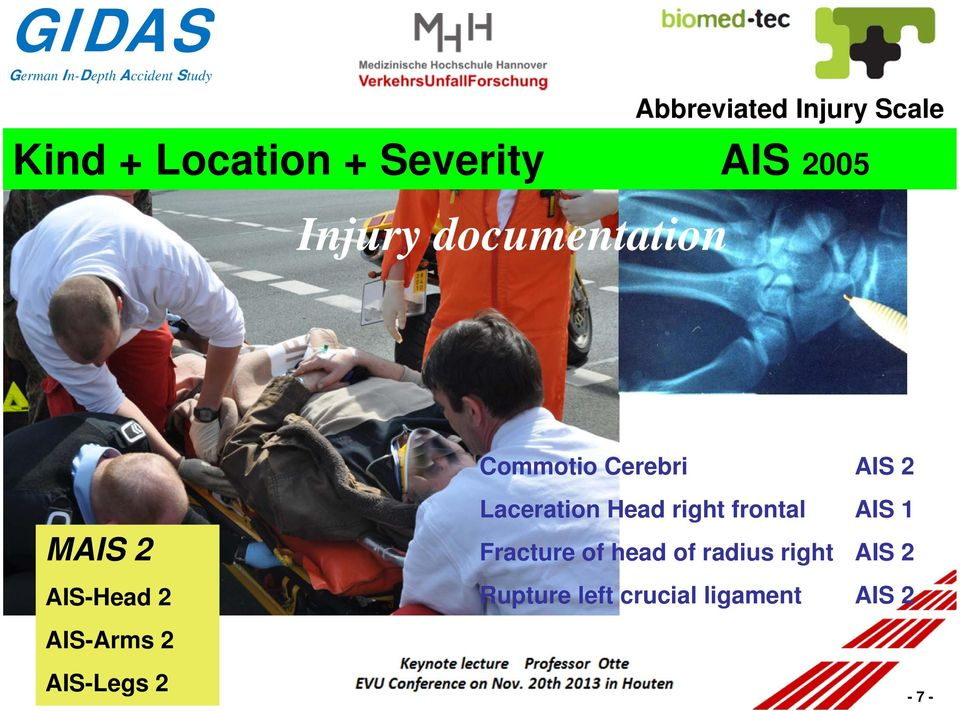 2 Laceration Head right frontal AIS 1 Fracture of head of radius