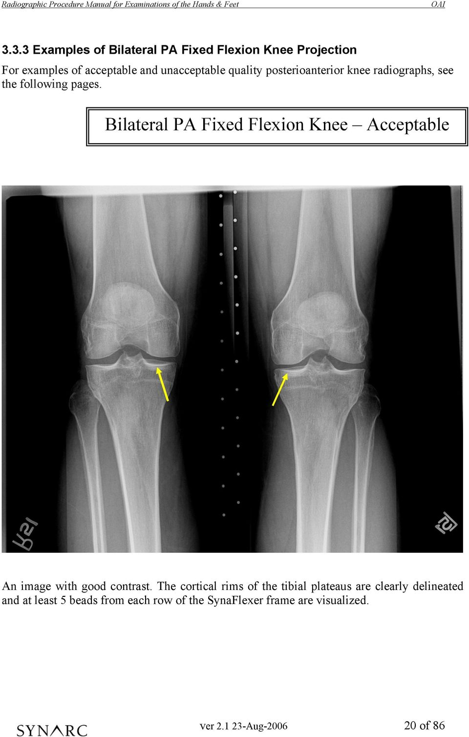 Bilateral PA Fixed Flexion Knee Acceptable An image with good contrast.