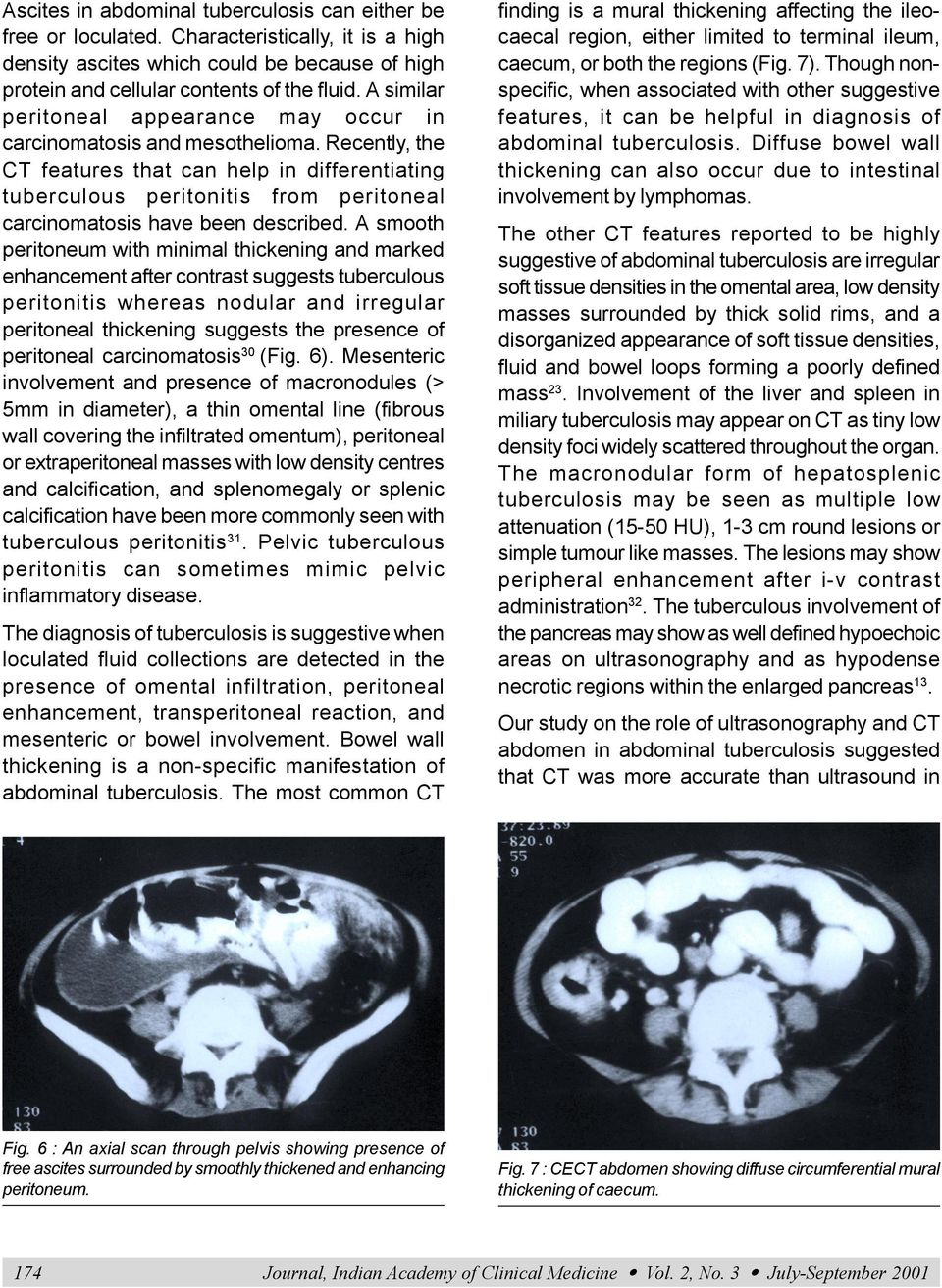 Recently, the CT features that can help in differentiating tuberculous peritonitis from peritoneal carcinomatosis have been described.