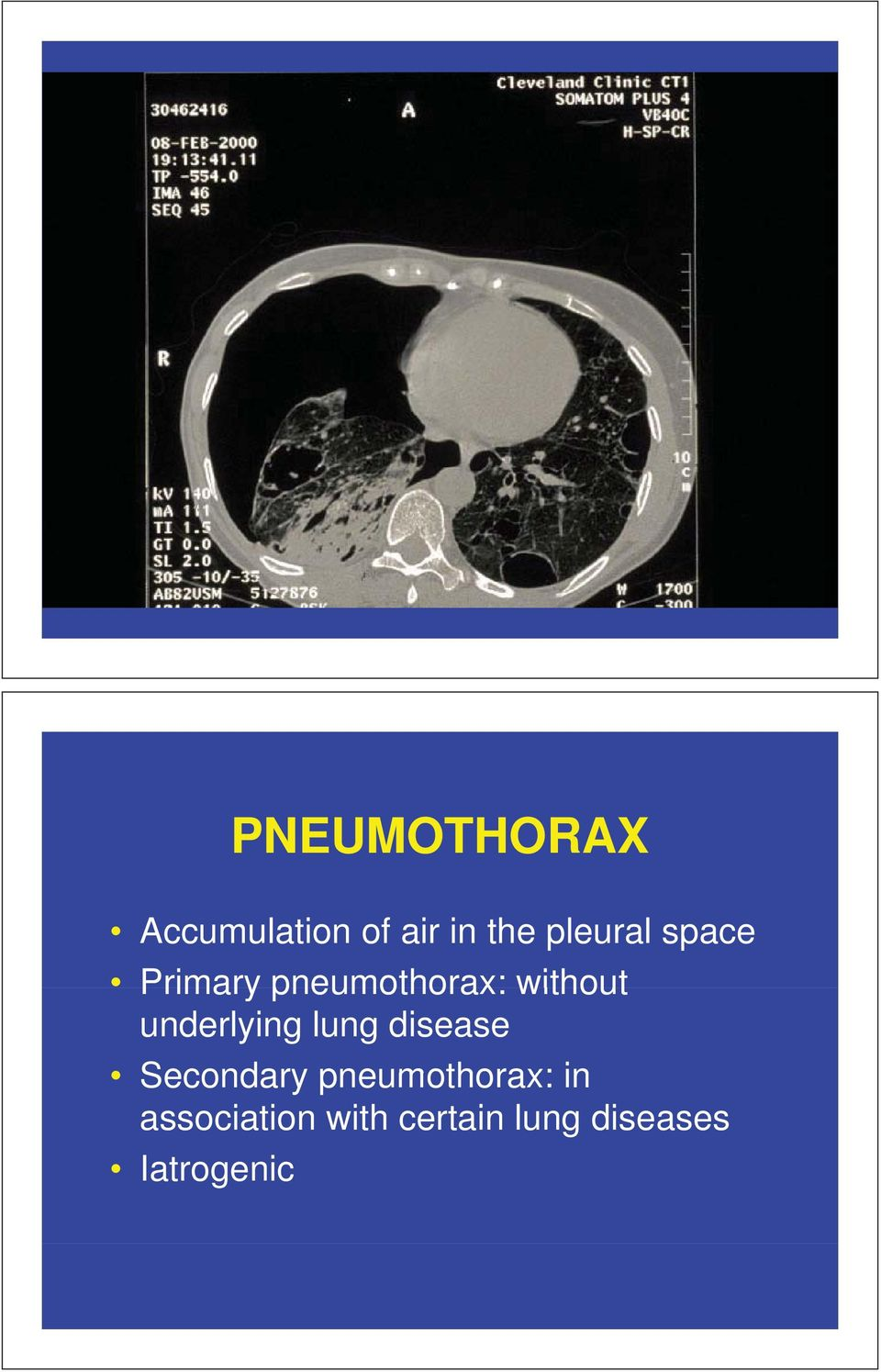 underlying lung disease Secondary