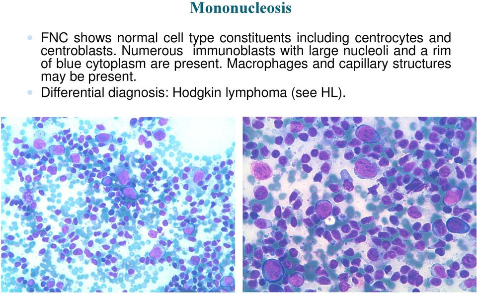 Numerous immunoblasts with large nucleoli and a rim of blue cytoplasm