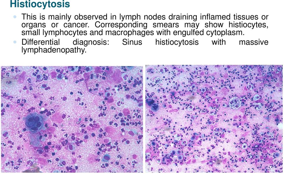 Corresponding smears may show histiocytes, small lymphocytes and