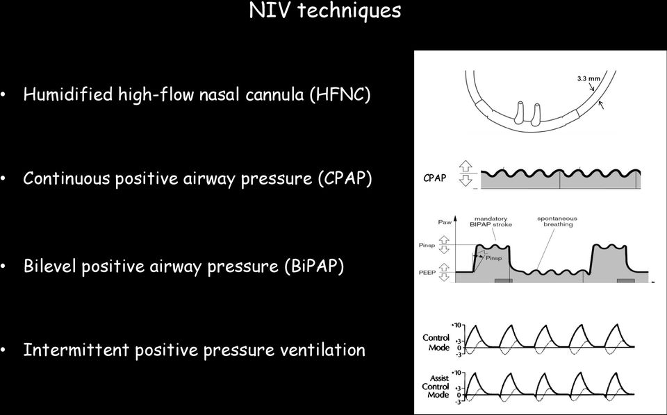 pressure (CPAP) CPAP Bilevel positive airway