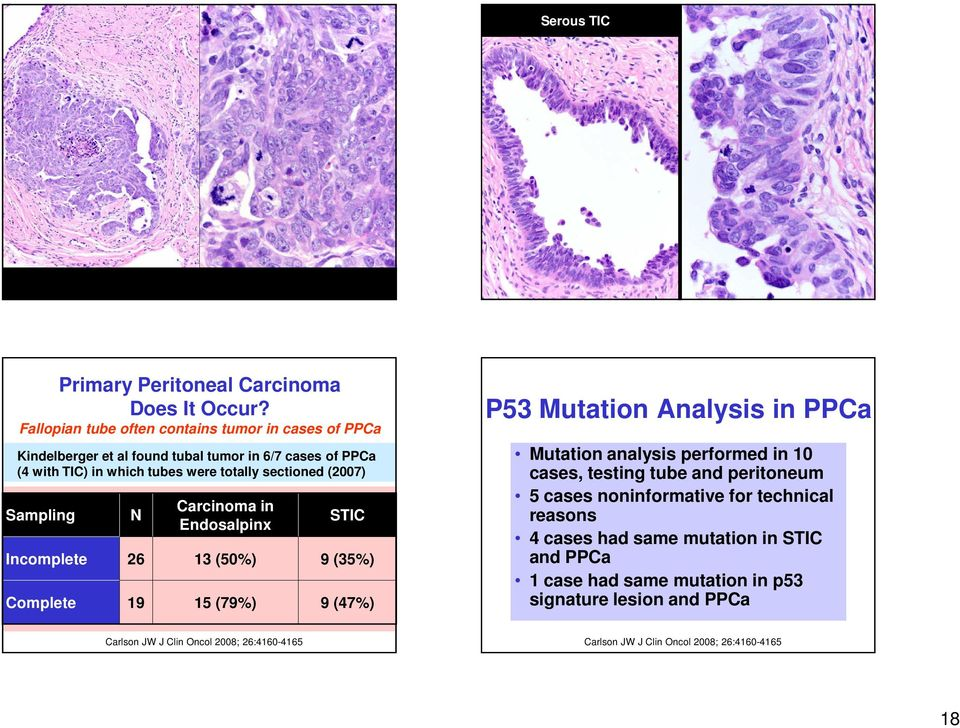 (2007) Sampling N Carcinoma in Endosalpinx STIC Incomplete 26 13 (50%) 9 (35%) Complete 19 15 (79%) 9 (47%) P53 Mutation Analysis in PPCa Mutation analysis