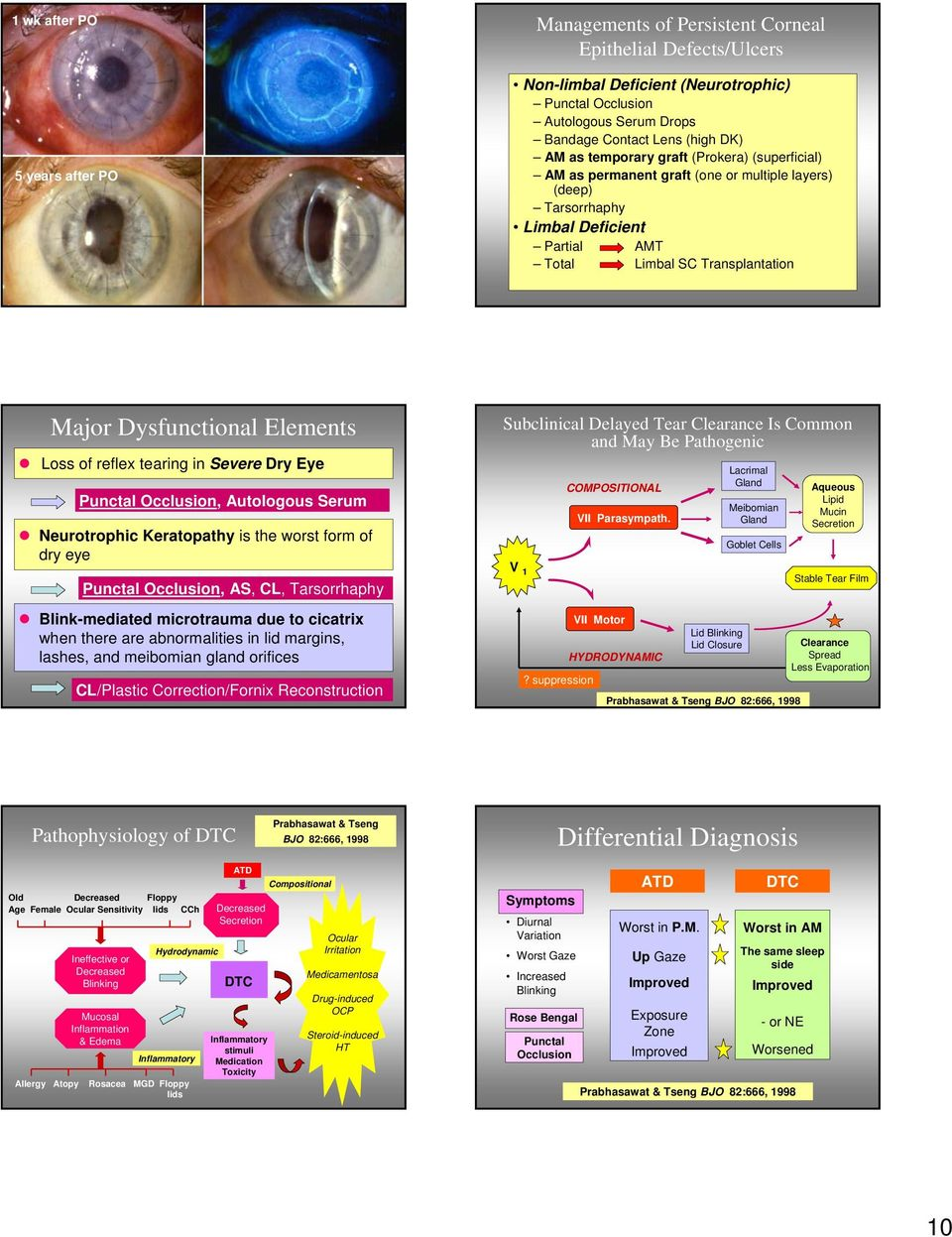 Elements Loss of reflex tearing in Severe Dry Eye Punctal Occlusion, Autologous Serum Neurotrophic Keratopathy is the worst form of dry eye Punctal Occlusion, AS, CL, Tarsorrhaphy Blink-mediated