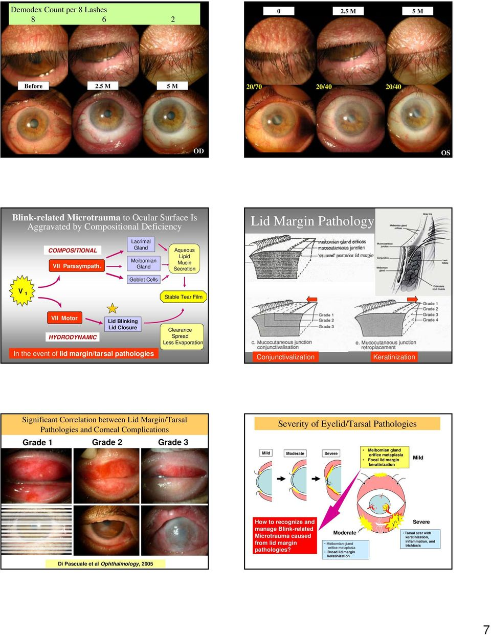 Conjunctivalization Keratinization Significant Correlation between Lid Margin/Tarsal Pathologies and Corneal Complications Grade 1 Grade 2 Grade 3 Mild Severity of Eyelid/Tarsal Pathologies