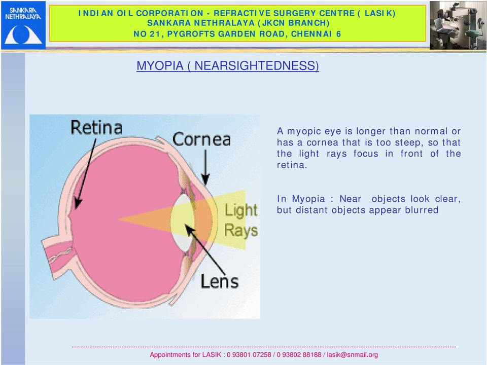 the light rays focus in front of the retina.