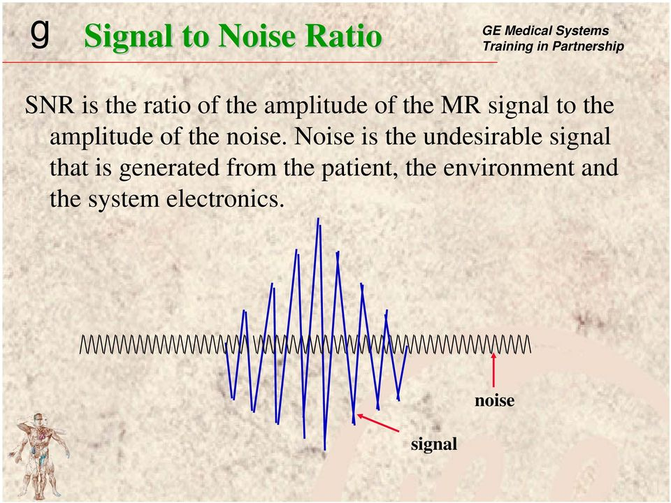Noise is the undesirable signal that is generated from