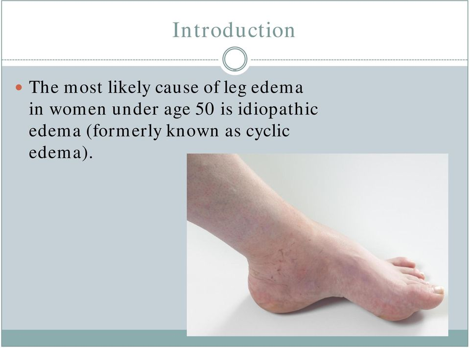 under age 50 is idiopathic