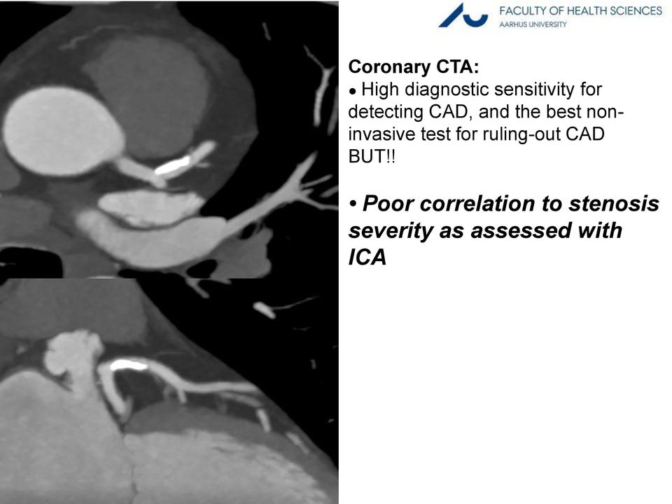 ! Poor correlation to stenosis severity as assessed with ICA