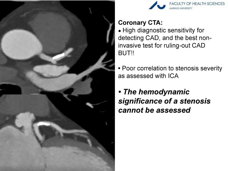 ! Poor correlation to stenosis severity as assessed with ICA The hemodynamic