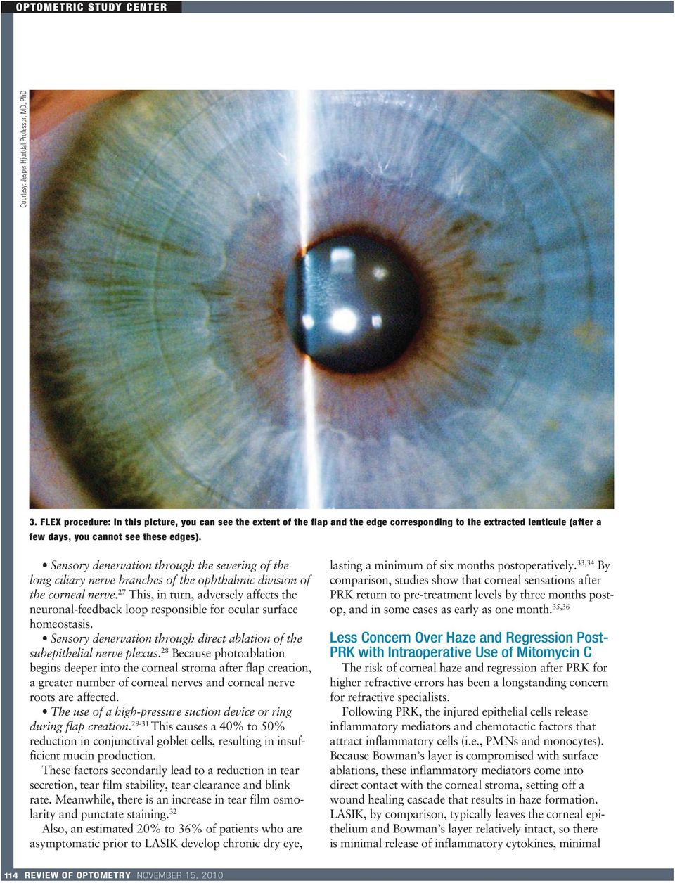 Sensory denervation through the severing of the long ciliary nerve branches of the ophthalmic division of the corneal nerve.