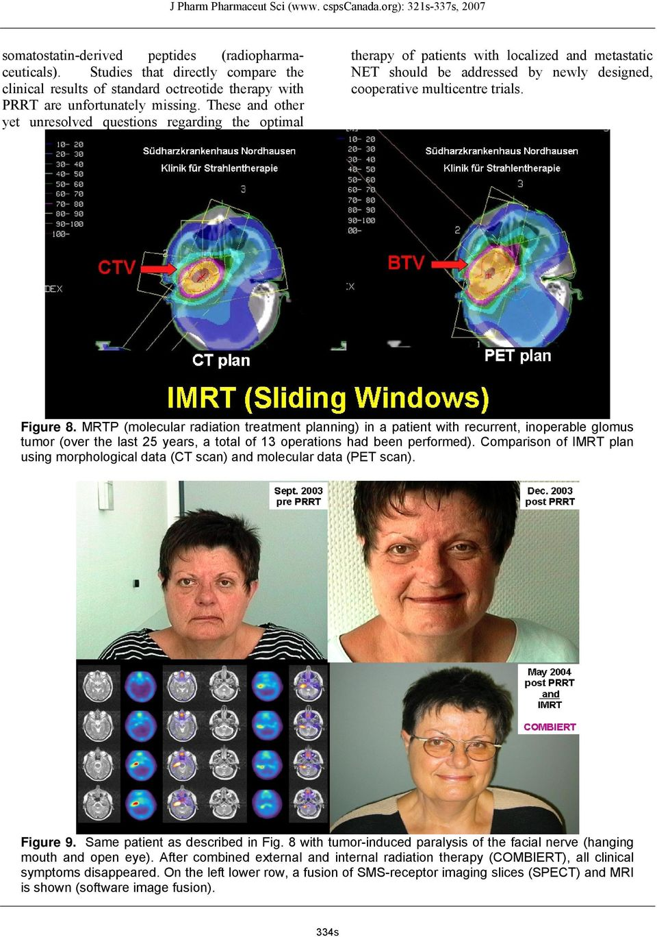 MRTP (molecular radiation treatment planning) in a patient with recurrent, inoperable glomus tumor (over the last 25 years, a total of 13 operations had been performed).