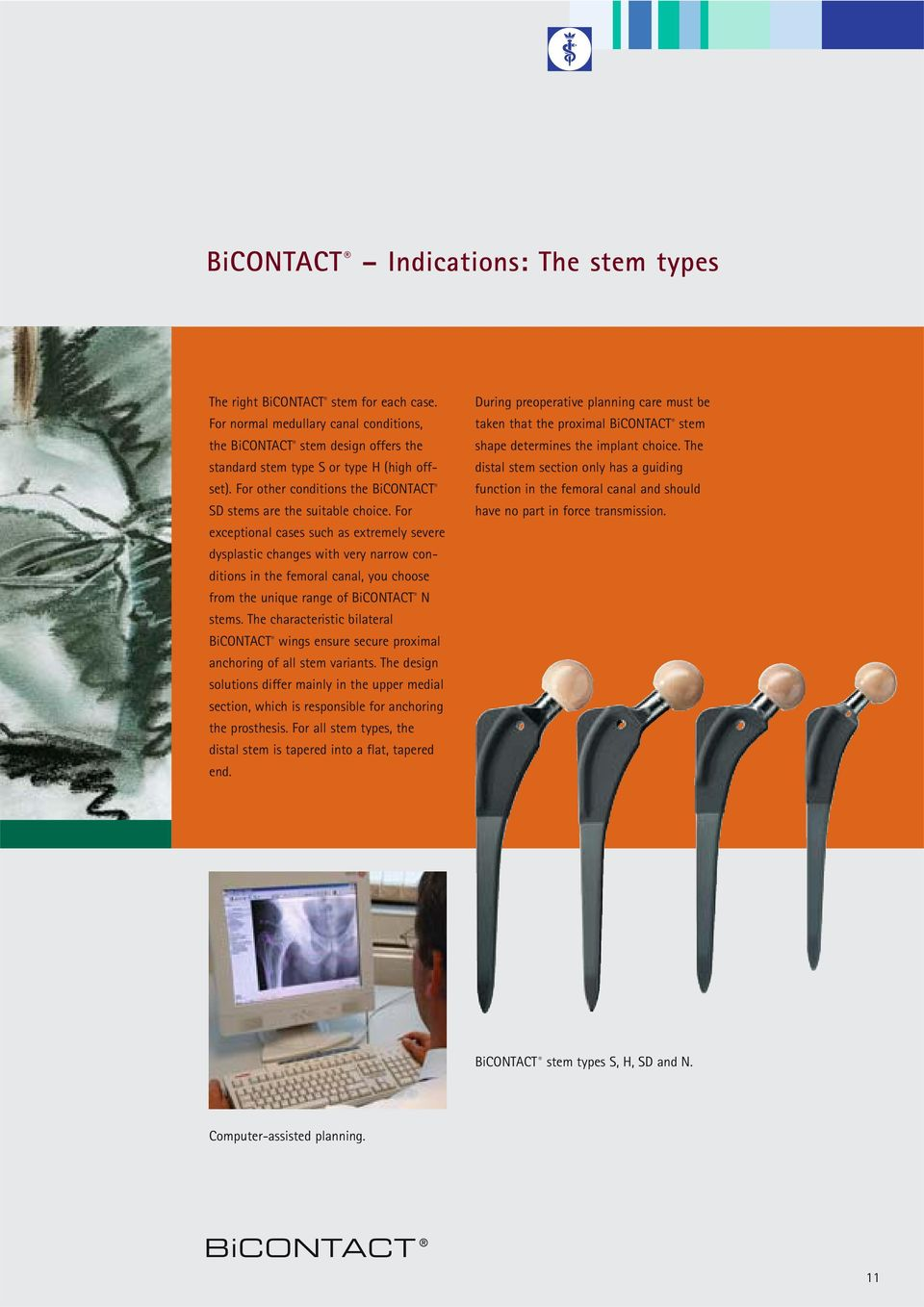 For exceptional cases such as extremely severe dysplastic changes with very narrow conditions in the femoral canal, you choose from the unique range of BiCONTACT N stems.