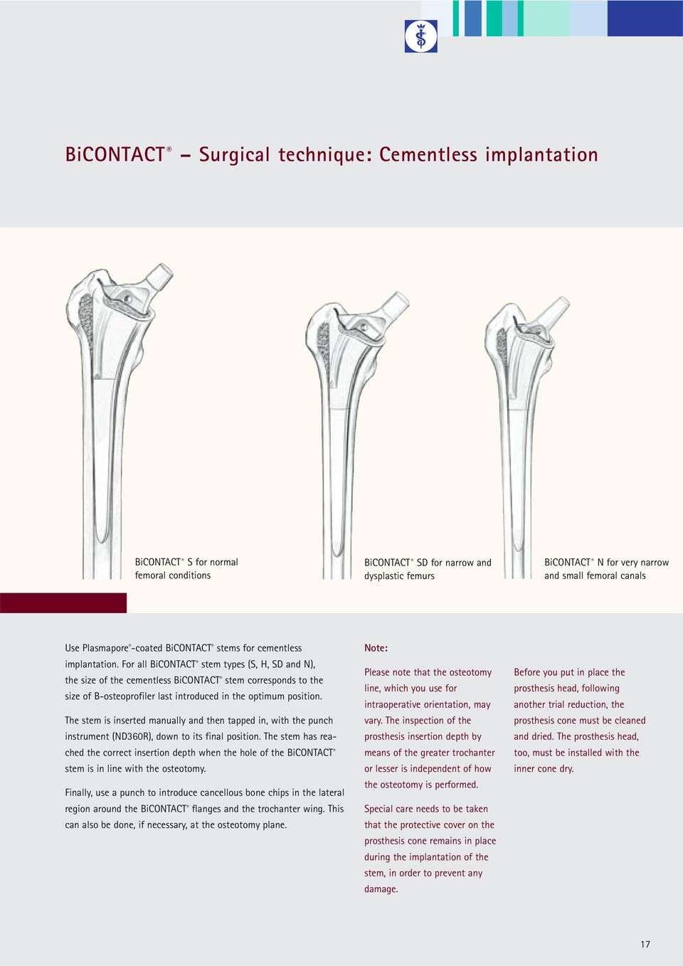 For all BiCONTACT stem types (S, H, SD and N), the size of the cementless BiCONTACT stem corresponds to the size of B-osteoprofiler last introduced in the optimum position.