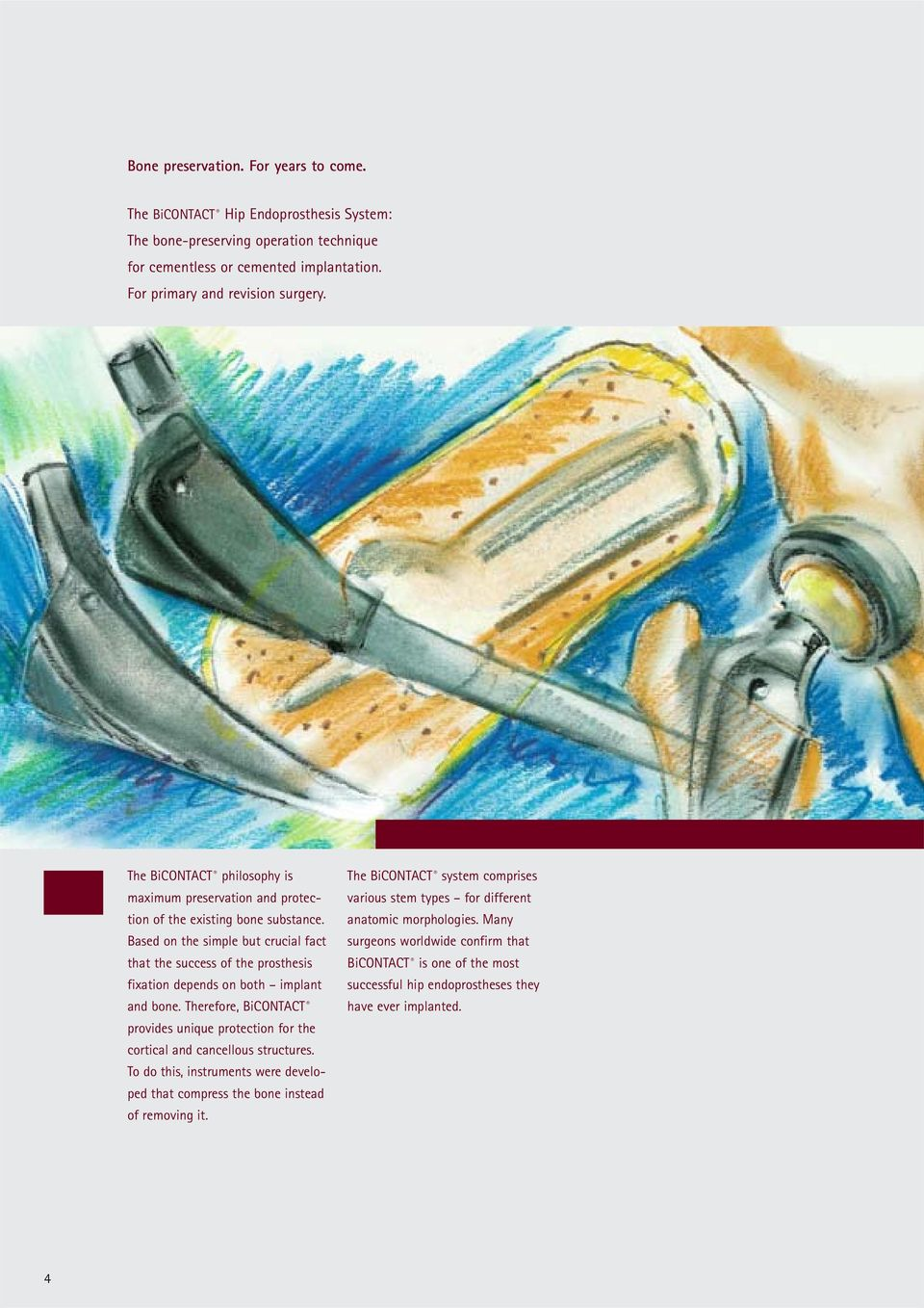 Based on the simple but crucial fact that the success of the prosthesis fixation depends on both implant and bone.