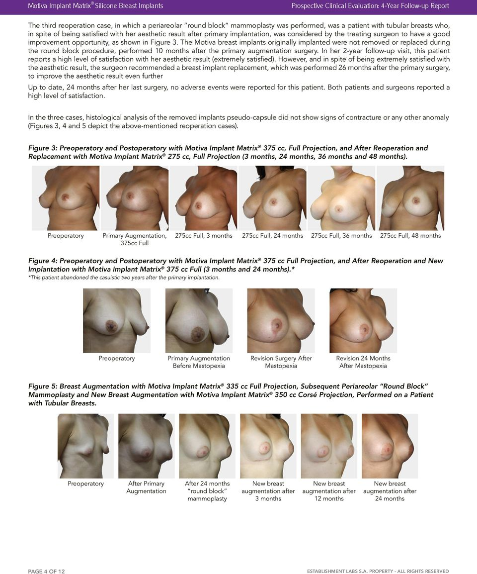 shown in Figure 3. The Motiva breast implants originally implanted were not removed or replaced during the round block procedure, performed 10 months after the primary augmentation surgery.