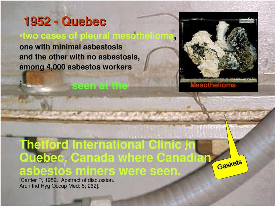 Thetford International Clinic in Quebec, Canada where Canadian asbestos miners were