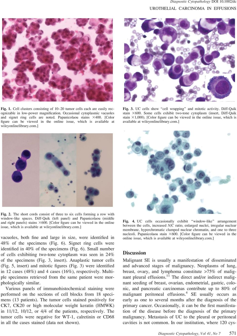 Diff-Quik stain 3600. Some cells exhibit two-tone cytoplasm (insert, Diff-Quik stain 31,000). [Color figure can be viewed in the online issue, which is available at wileyonlinelibrary.com.] Fig. 2.