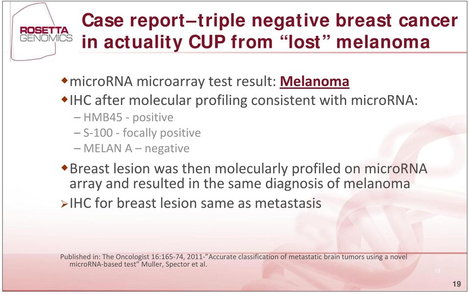 molecularly profiled on microrna array and resulted in the same diagnosis of melanoma IHC for breast lesion same as metastasis
