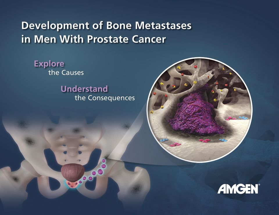 Prostate Cancer Explore