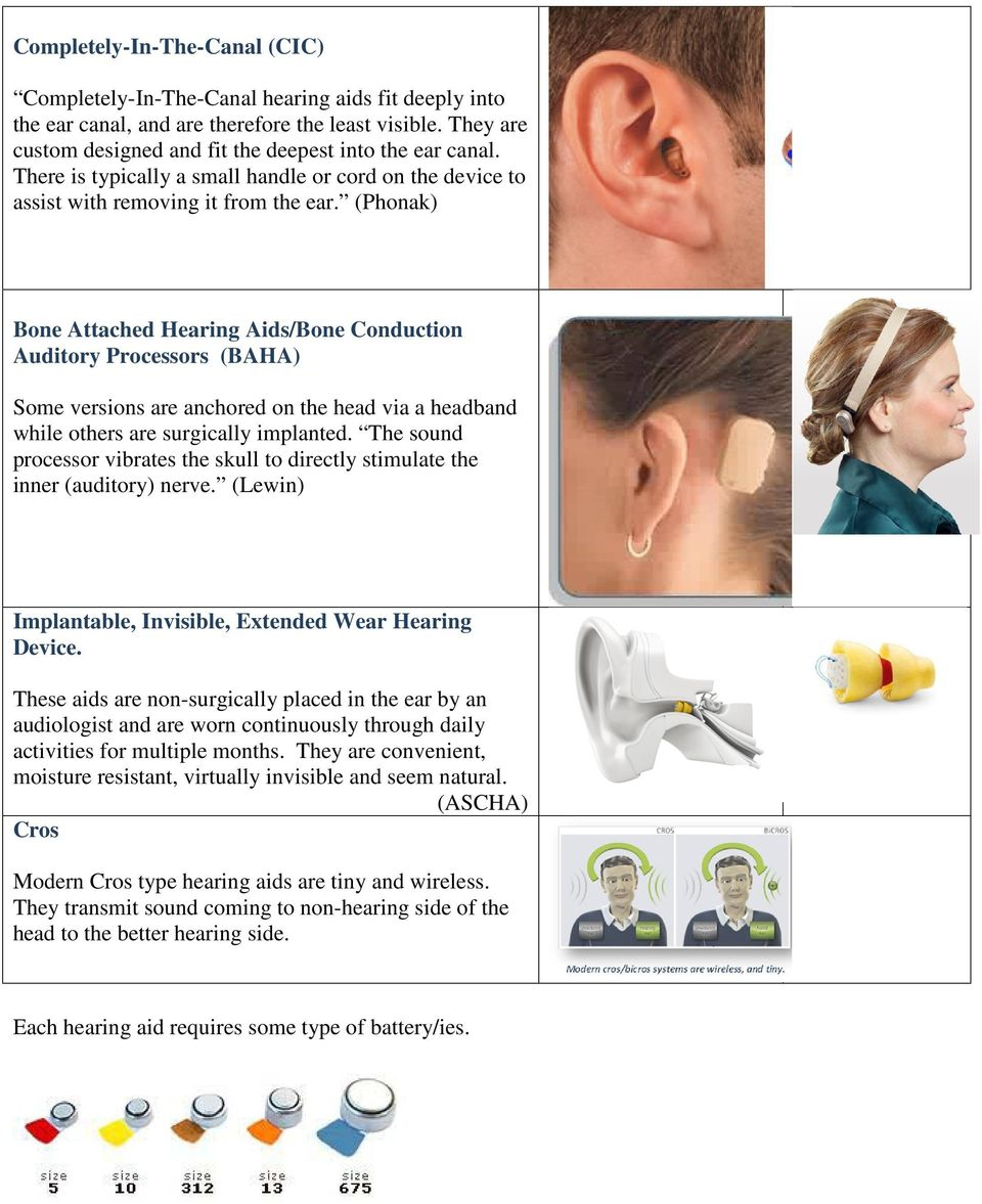 (Phonak) Bone Attached Hearing Aids/Bone Conduction Auditory Processors (BAHA) Some versions are anchored on the head via a headband while others are surgically implanted.