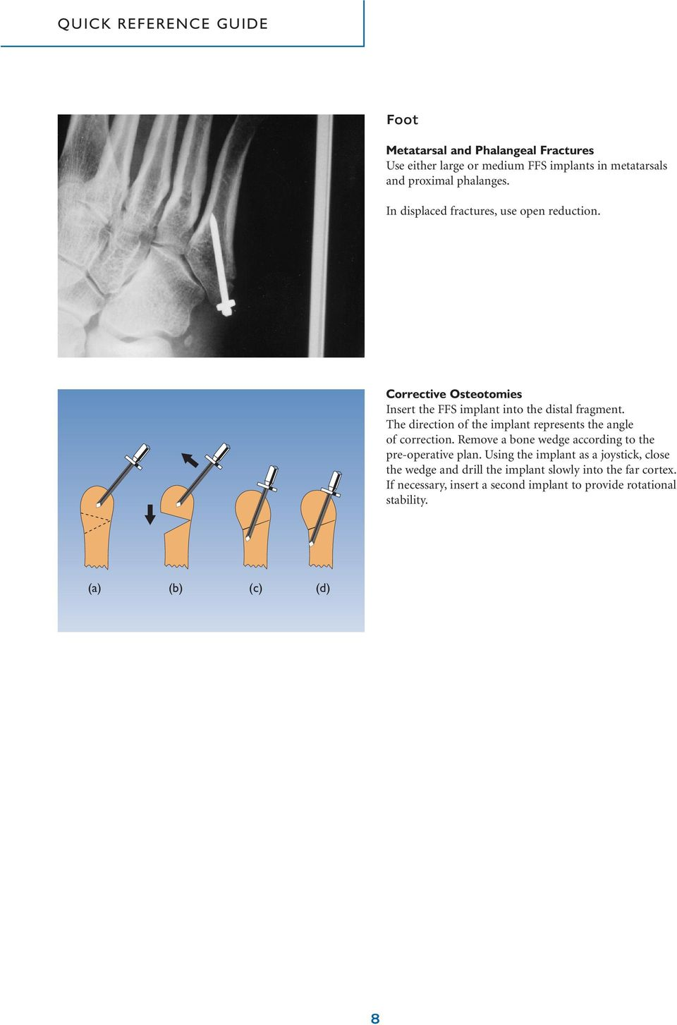 The direction of the implant represents the angle of correction. Remove a bone wedge according to the pre-operative plan.