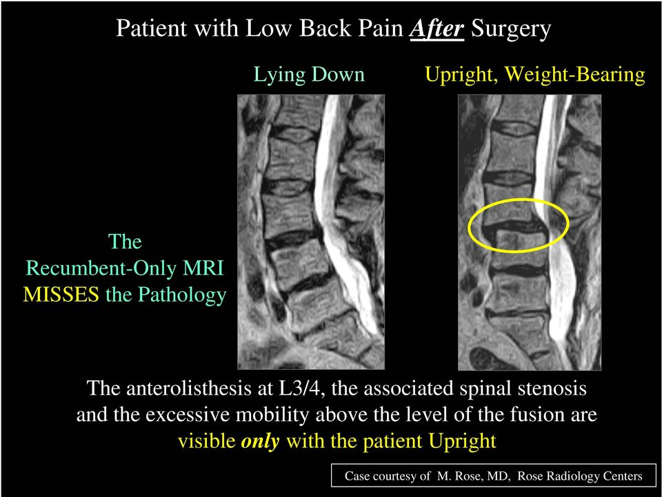 associated spinal stenosis and the excessive mobility above the level of the