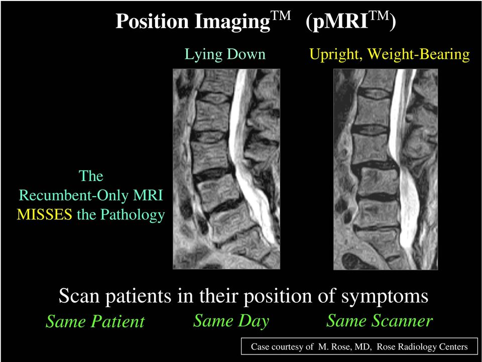 Scan patients in their position of symptoms Same Patient